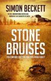 stonebruises200